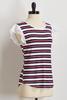 Striped Poplin Sleeve Top